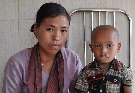 Cleft Lip, Chittagong, Bangladesh 2011