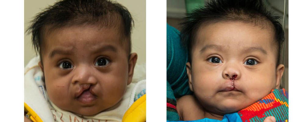 Before and after.Vidarthi