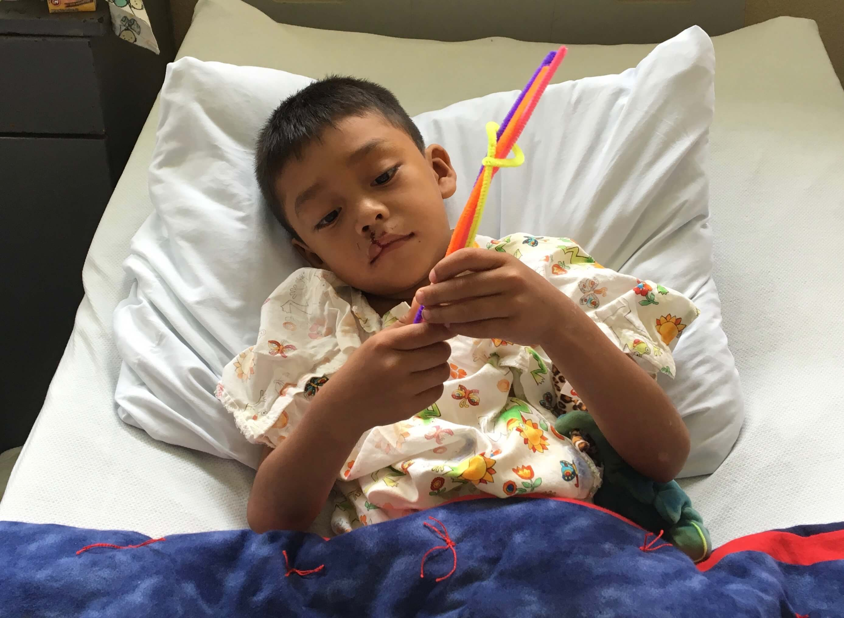 This child plays with pipe cleaners in his ward bed.
